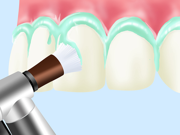 PMTC (Professional Mechanical Tooth Cleaning)